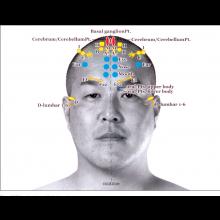 YNSA - Yamamoto New Scalp Acupuncture Athens 2019